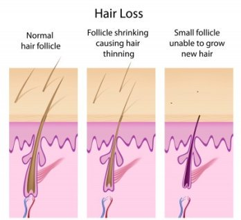 how to grow back hair from a thyroid disease